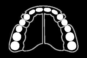 Abnehmbare Zahnspangen